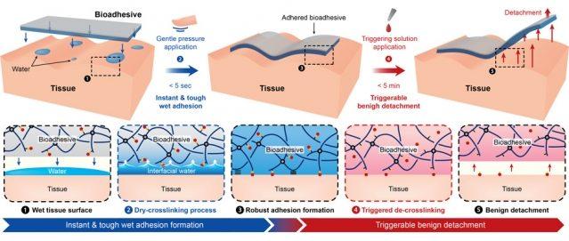 Esquema que muestra los pasos para emplear el adhesivo en cirugía y cómo eliminarlo sin causar daño